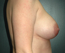 Breast Implants after 3545030
