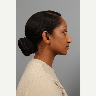 25-34 year old woman treated with African American Rhinoplasty before 3710079