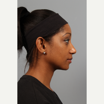 25-34 year old woman treated with African American Rhinoplasty after 3710079