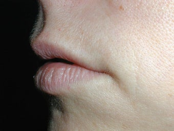Restylane for upper lip before 100943