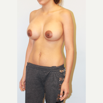 25-34 year old woman treated with Breast Implants after 3027009
