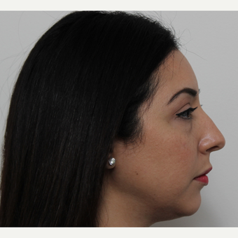 35-44 year old woman treated with Rhinoplasty before 3402041
