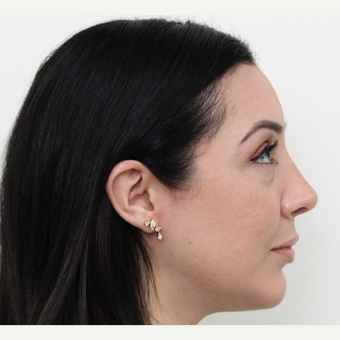 35-44 year old woman treated with Rhinoplasty after 3402041