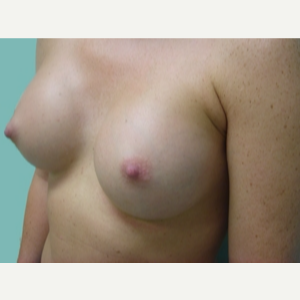 35-44 year old woman treated with Breast Augmentation after 3168100