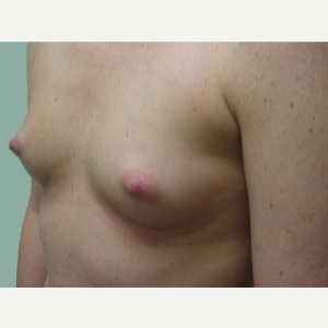 35-44 year old woman treated with Breast Augmentation before 3168100