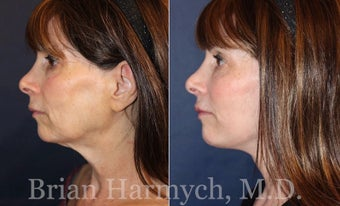 62 year-old female before and 3.5 months after Facelift and Fat Transfer (Autologous Fat Transplant) before 3445872