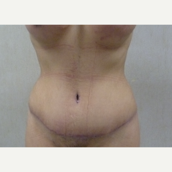 35-44 year old woman treated with Tummy Tuck after 3288364