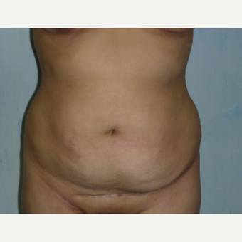 35-44 year old woman treated with Tummy Tuck before 3288364