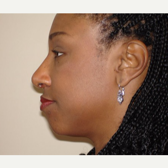 35-44 year old woman treated with Rhinoplasty after 3398846