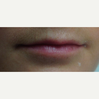 25-34 year old woman treated with Lip Augmentation before 3496216