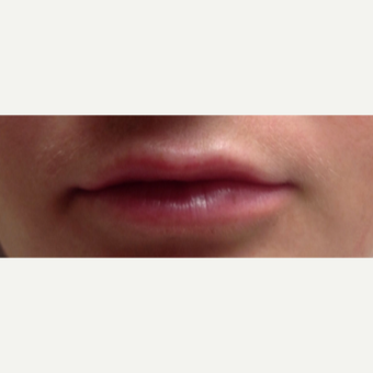 25-34 year old woman treated with Lip Augmentation after 3496216