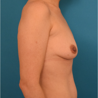 25-34 year old woman treated with Breast Implants before 3042183