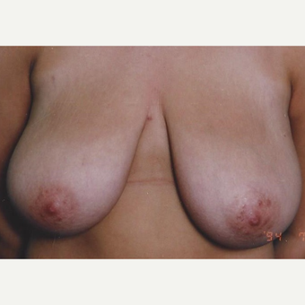 35-44 year old woman treated with Breast Reduction before 3629253