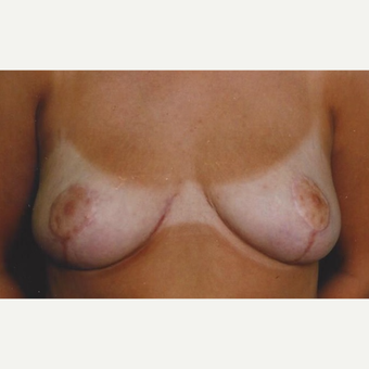 35-44 year old woman treated with Breast Reduction after 3629253