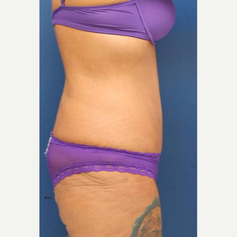 31 year old female, 100 pound weight loss with diet and exercise, had an abdominoplasty (tummy tuck) after 3814752