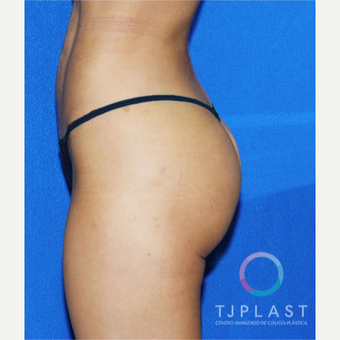 25-34 year old woman treated with Butt Implants after 3765027