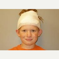 17 or under year old man treated with Ear Surgery before 3099419