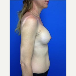 Breast Augmentation after 3744107
