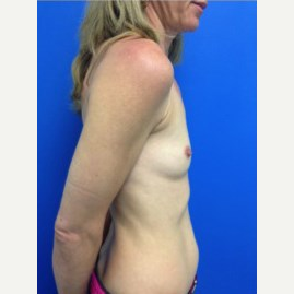 Breast Augmentation before 3744107