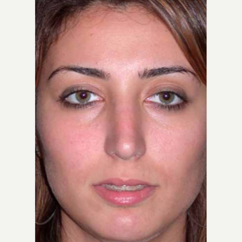35-44 year old woman treated with Rhinoplasty after 3521225