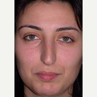 35-44 year old woman treated with Rhinoplasty before 3521225