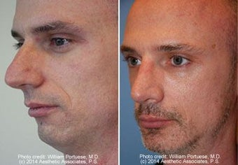 Rhinoplasty, Chin Implant before 91931