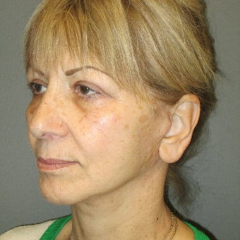 55-64 year old woman treated with Lower Face Lift after 2082251
