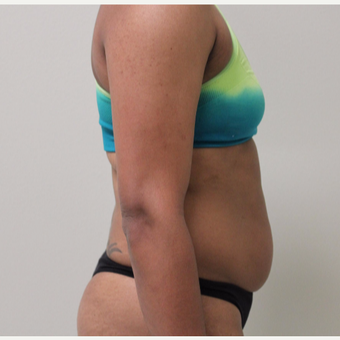 25-34 year old woman treated with Liposuction before 3445904