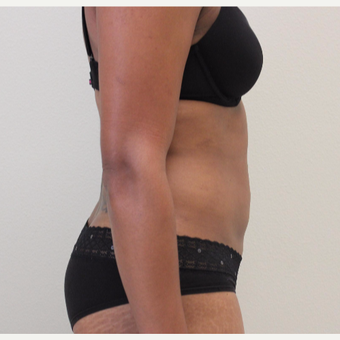 25-34 year old woman treated with Liposuction after 3445904