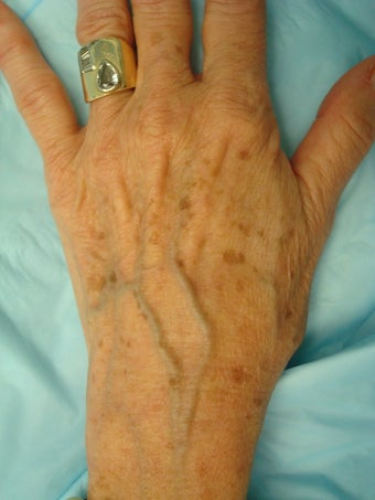 45-54 year old woman treated with IPL before 611046