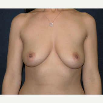 35-44 year old woman treated with Breast Implants before 3455601