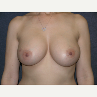 35-44 year old woman treated with Breast Implants after 3455601