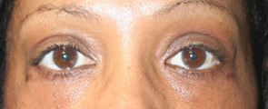 49 Year Old Female Treated for Upper and Lower Eyelid after 1245756