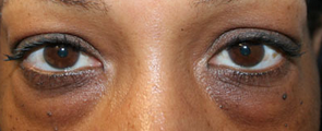 49 Year Old Female Treated for Upper and Lower Eyelid before 1245756