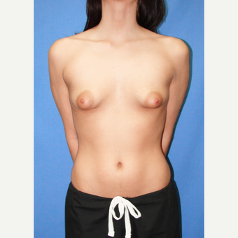 18-24 year old woman treated with Breast Augmentation before 3067175