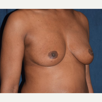 35-44 year old woman treated with Breast Augmentation before 2985992