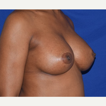 35-44 year old woman treated with Breast Augmentation after 2985992