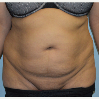 25-34 year old woman treated with Tummy Tuck before 3629363