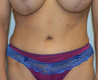 25-34 year old woman treated with Tummy Tuck after 3629363