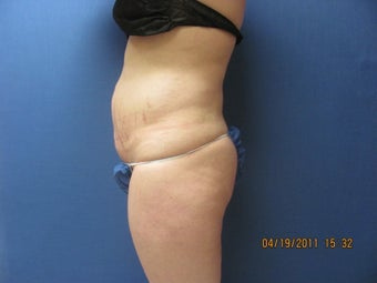 Liposuction of Abdomen and Waist 762370