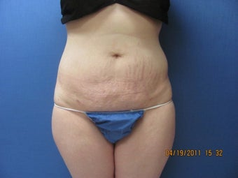 Liposuction of Abdomen and Waist after 762370