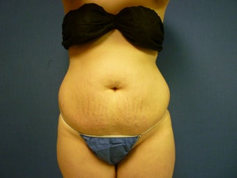 Liposuction of Abdomen and Waist before 762370