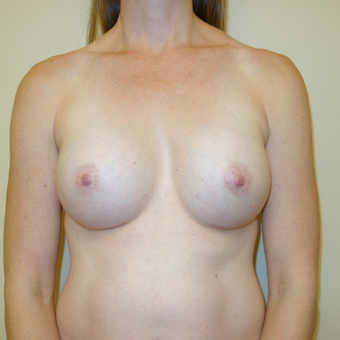 35-44 year old woman treated with Breast Augmentation after 2834641
