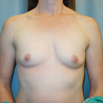 35-44 year old woman treated with Breast Augmentation before 2834641