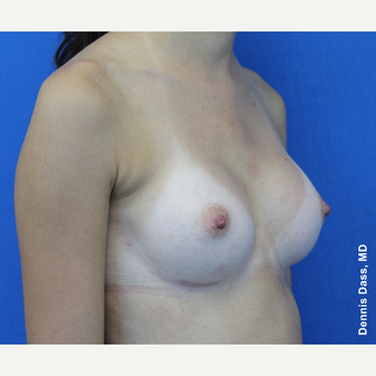 25-34 year old woman treated with Sientra Breast Implants after 3353149