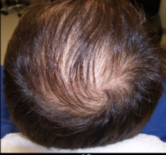 35-44 year old man treated with PRP for Hair Loss after 3208972