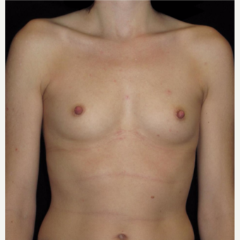 31 year old woman with asymmetry treated with Breast Augmentation before 3104751