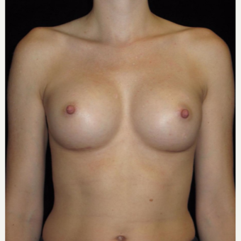 31 year old woman with asymmetry treated with Breast Augmentation after 3104751