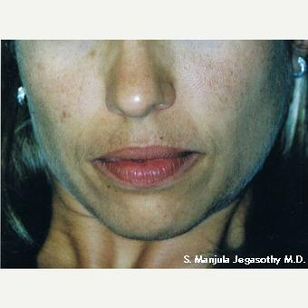 Melasma and Brown Spots treated with Chemical Peel