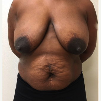 25-34 year old woman treated with Breast Reduction before 3214480